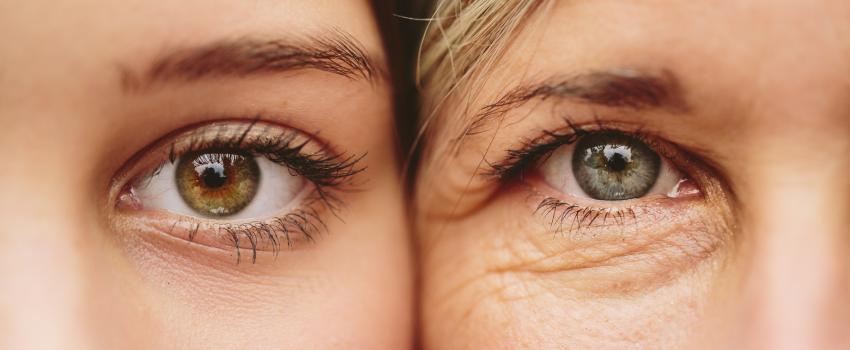 4 tipp a szem alatti karikák eltüntetésére házilag
